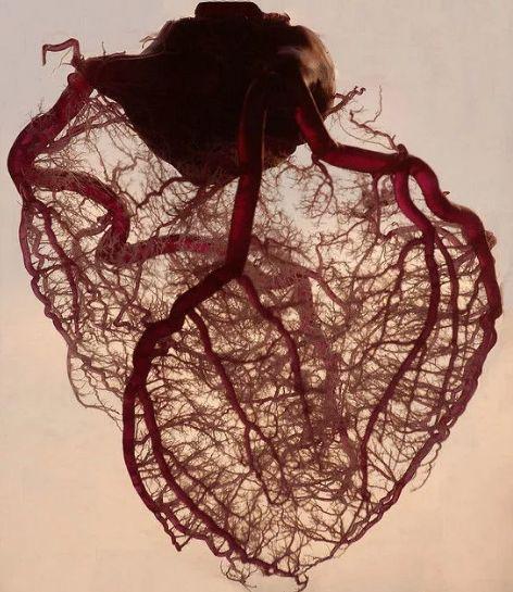 正常人的血管图